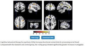 Retraining amygdala increases connections and reduces symptoms
